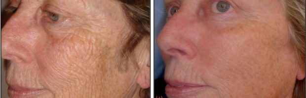 Laser Skin Resurfacing Denver